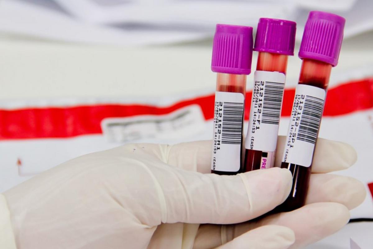 Cancro do ovário e uma gota de sangue