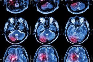 Novo tratamento para tumores cerebrais usando dispositivos bioelectrónicos